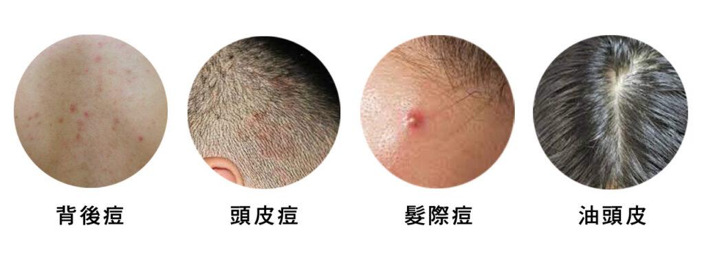 背後痘、頭皮痘、髮際痘、油頭皮